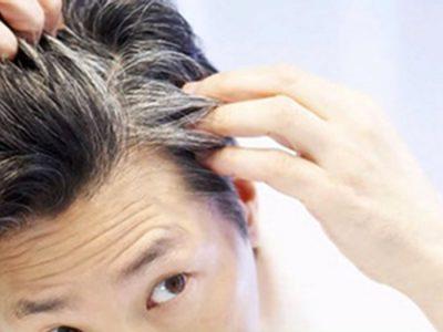 دلایل سفید شدن موها در جوانی چیست ؟ و راهکار درمان آن