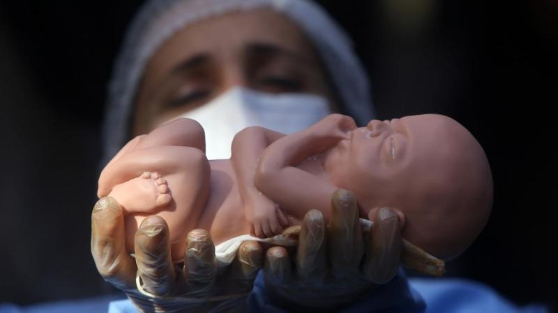 قوانین موضوعه درباره سقط جنین غیرسالم چه میگویند؟