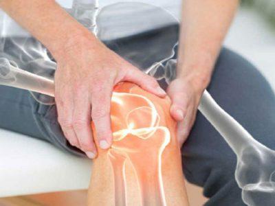 کشف روشی موثر برای درمان پوکی استخوان